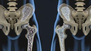 O treino de força traz benefícios para osteoporose e sarcopenia.