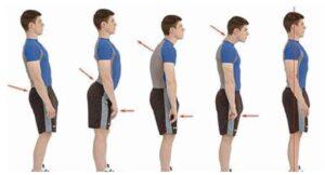 As evidências científicas de elevada qualidade demonstram que não existe associação nem causalidade entre a postura e a dor lombar e cervical.