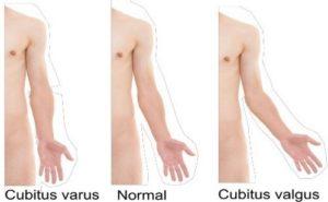 Ângulo de carregamento: Experimente colocar-se de frente para um espelho com as palmas das mãos viradas para a frente, irá reparar que o seu braço não está totalmente alinhado com o seu antebraço.